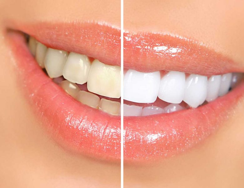 Diş Sızlaması Ciddi Bir Sorun Mudur?