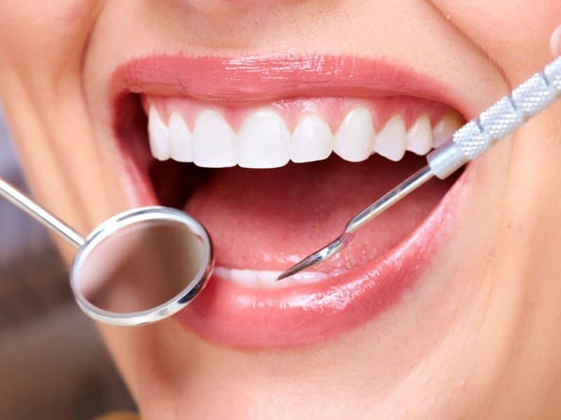Eryaman Diş Kaplama ve Dolgu Tedavisi