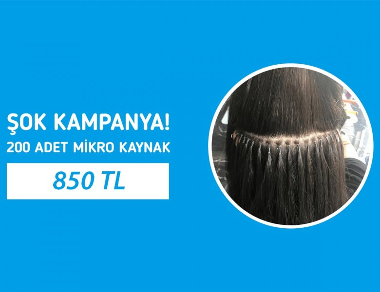 Saçı Uzamayanlar İçin Uygun Kaynak