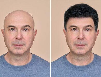 Ünlülerin Tercihi Oscar Hair Protez Saç Merkezi Şişli'de